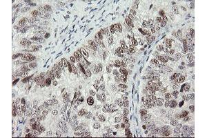 Image no. 12 for anti-Replication Factor C (Activator 1) 2, 40kDa (RFC2) (AA 1-234) antibody (ABIN1490616)
