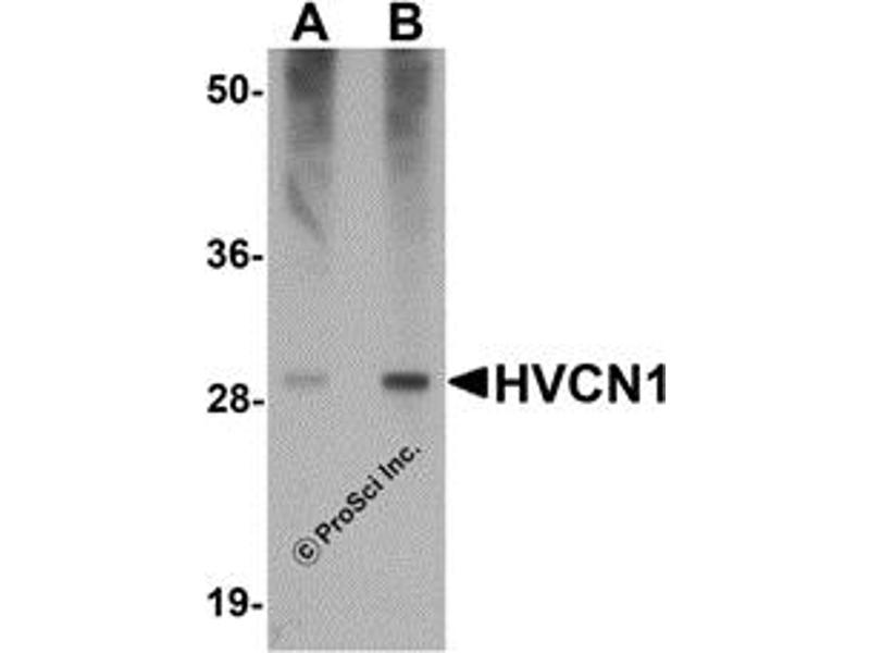 Western Blotting (WB) image for anti-Hydrogen Voltage-Gated Channel 1 (HVCN1) (C-Term) antibody (ABIN1030426)