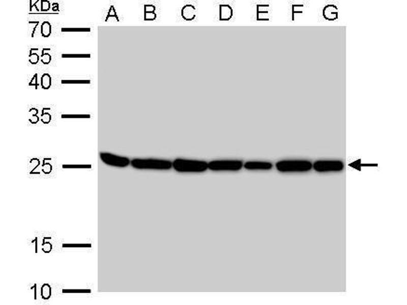 Western Blotting (WB) image for anti-Triosephosphate Isomerase 1 (TPI1) (AA 187-249) antibody (ABIN552596)