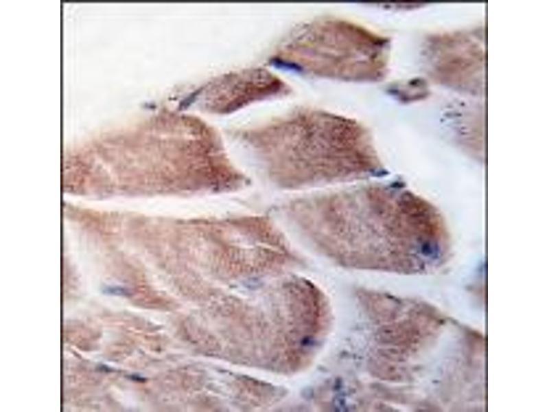image for anti-RPS6KA3 antibody (Ribosomal Protein S6 Kinase, 90kDa, Polypeptide 3) (N-Term) (ABIN360345)