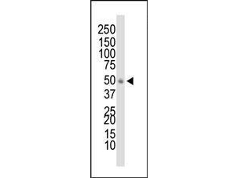 Western Blotting (WB) image for anti-Docking Protein 1, 62kDa (Downstream of tyrosine Kinase 1) (DOK1) (AA 9-39), (N-Term) antibody (ABIN392070)
