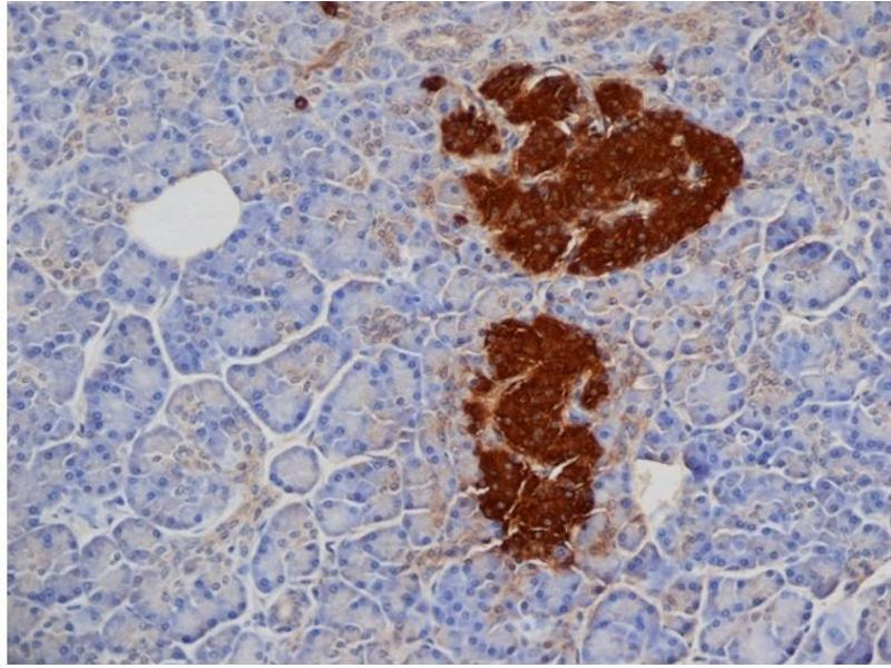Immunohistochemistry (Paraffin-embedded Sections) (IHC (p)) image for anti-Insulin (INS) antibody (ABIN316680)