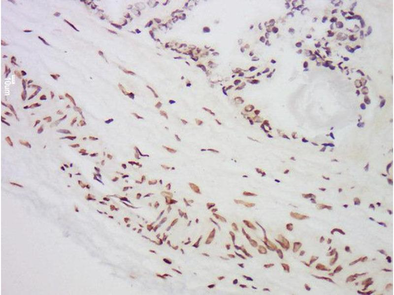 Immunohistochemistry (Paraffin-embedded Sections) (IHC (p)) image for anti-Macrophage Stimulating 1 (Hepatocyte Growth Factor-Like) (MST1) (AA 400-450) antibody (ABIN747308)