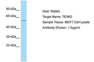 Image no. 1 for anti-Testis-Specific Kinase 2 (TESK2) (C-Term) antibody (ABIN6750038)