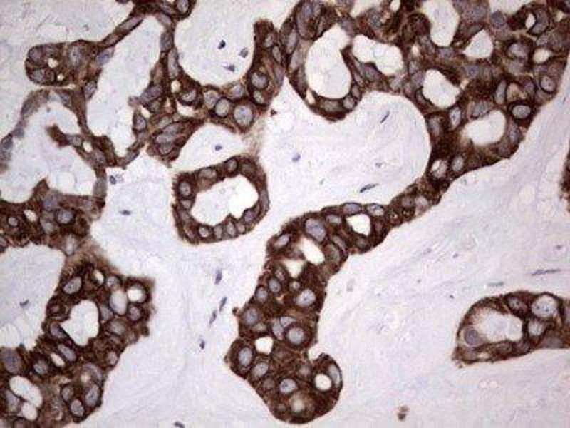 Immunohistochemistry (IHC) image for anti-Drebrin-Like (DBNL) antibody (ABIN4317500)