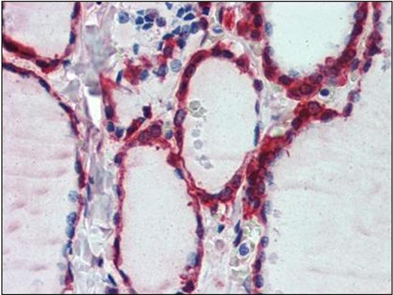 Immunohistochemistry (Paraffin-embedded Sections) (IHC (p)) image for anti-Peroxiredoxin 1 antibody (PRDX1) (Internal Region) (ABIN615447)