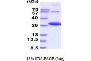 Image no. 1 for Ras-related Protein Ral-A (rala) (AA 1-203) protein (His tag) (ABIN5855037)