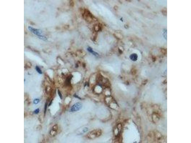 Immunohistochemistry (IHC) image for anti-EIF4EBP1 antibody (Eukaryotic Translation Initiation Factor 4E Binding Protein 1) (N-Term) (ABIN2957846)