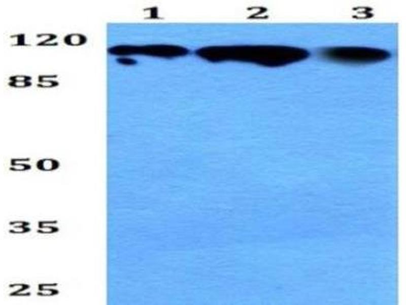 Western Blotting (WB) image for anti-Retinoblastoma 1 (RB1) antibody (ABIN4349471)