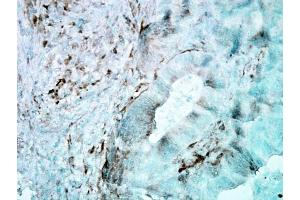 Immunohistochemistry (IHC) image for anti-Heat Shock 27kDa Protein 1 (HSPB1) antibody (Biotin) (ABIN2481421)