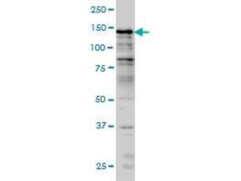 Immunohistochemistry (IHC) image for anti-Lysine (K)-Specific Demethylase 2B (KDM2B) (AA 457-556) antibody (ABIN393836)