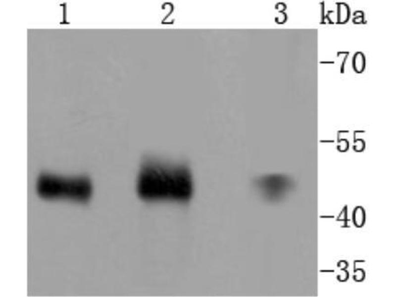 Western Blotting (WB) image for anti-Mitogen-Activated Protein Kinase Kinase 7 (MAP2K7) (AA 400-500) antibody (ABIN5950426)