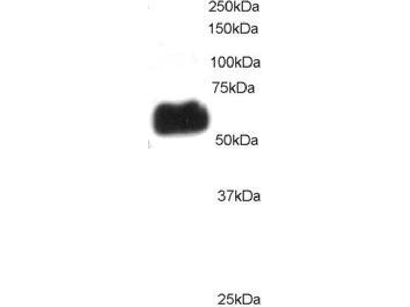 Western Blotting (WB) image for anti-PPP2R5B Antikörper (Protein Phosphatase 2, Regulatory Subunit B', beta) (C-Term) (ABIN257679)