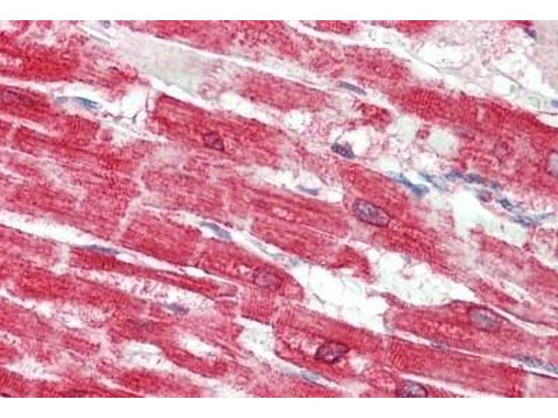 Immunohistochemistry (IHC) image for anti-ATPase, Ca++ Transporting, Cardiac Muscle, Slow Twitch 2 (ATP2A2) (AA 658-671) antibody (ABIN1976864)