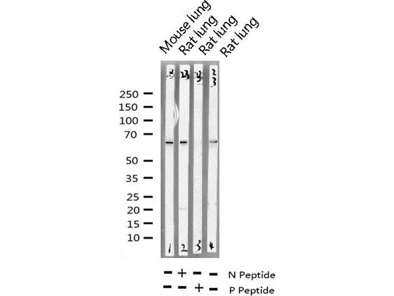 Western Blotting (WB) image for anti-Protein-tyrosine Phosphatase 1C (PTPN6) (pTyr536) antibody (ABIN6255949)