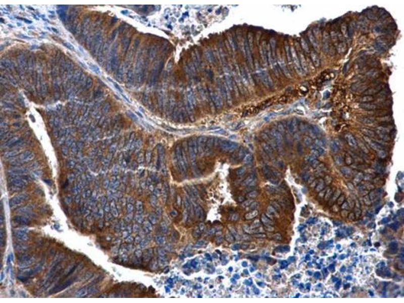 Immunohistochemistry (IHC) image for anti-Interleukin 1 Receptor, Type II (IL1R2) (Center) antibody (ABIN2856630)
