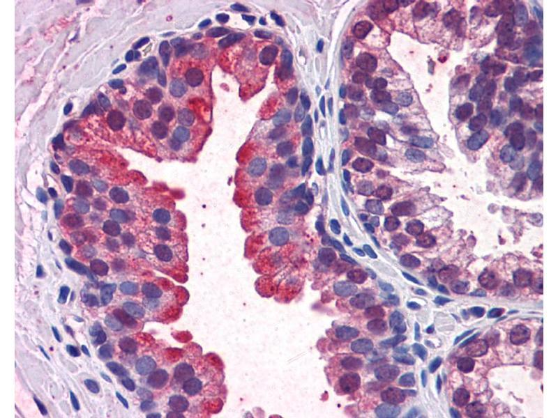 Immunohistochemistry (IHC) image for anti-Kelch-Like ECH-Associated Protein 1 (KEAP1) (N-Term) antibody (ABIN183073)