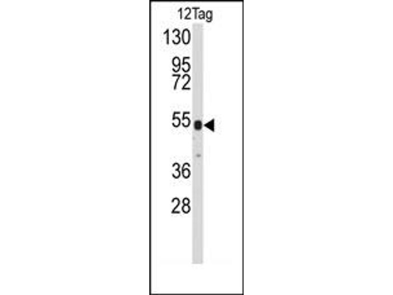 image for anti-V5 Epitope Tag antibody (ABIN356537)