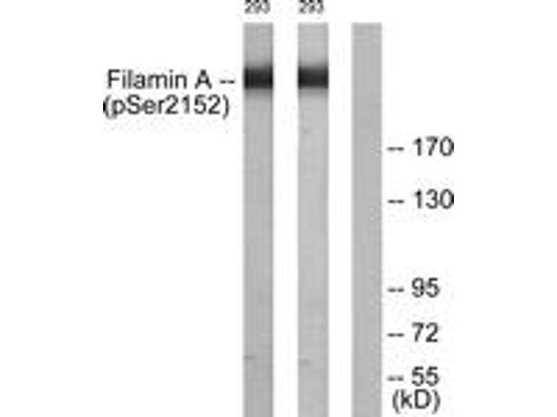 Western Blotting (WB) image for anti-Filamin A, alpha (FLNA) (AA 2121-2170), (pSer2152) antibody (ABIN1531228)