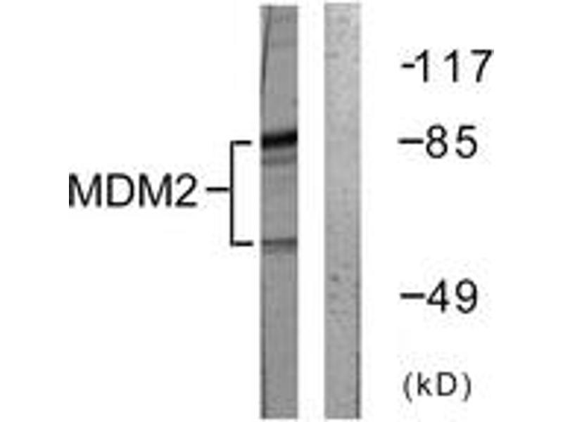 Western Blotting (WB) image for anti-Mdm2, p53 E3 Ubiquitin Protein Ligase Homolog (Mouse) (MDM2) (AA 132-181) antibody (ABIN1532360)