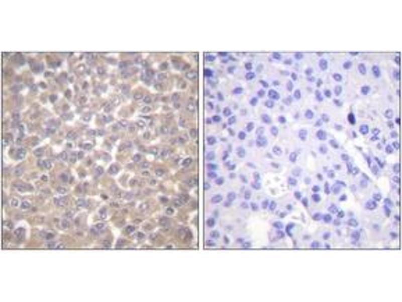 Immunohistochemistry (IHC) image for anti-TNFRSF1A-Associated Via Death Domain (TRADD) (AA 251-300) antibody (ABIN1533447)