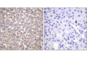 Immunohistochemistry (IHC) image for anti-TNFRSF1A-Associated Via Death Domain (TRADD) (AA 251-300) antibody (ABIN1533447)