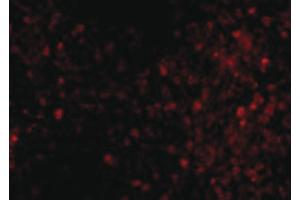 Image no. 2 for anti-Transient Receptor Potential Cation Channel, Subfamily C, Member 6 (TRPC6) (C-Term) antibody (ABIN6656402)