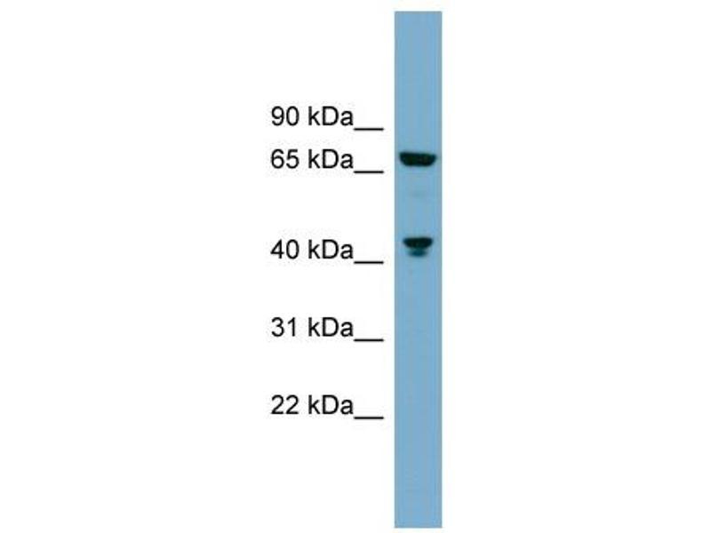 Western Blotting (WB) image for anti-Glutaminase (GLS) (C-Term) antibody (ABIN2786054)