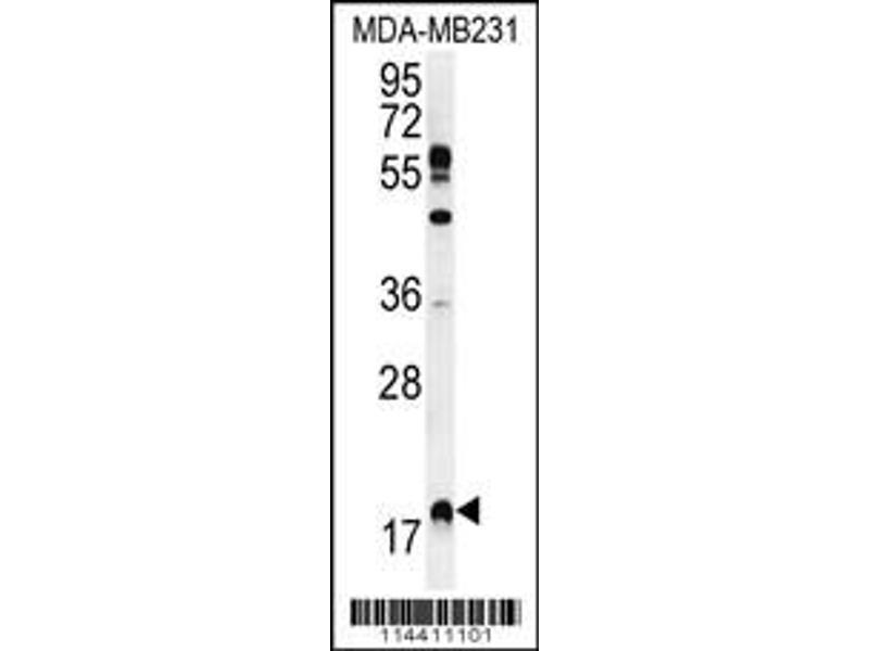 Western Blotting (WB) image for anti-RHEB antibody (Ras Homolog Enriched in Brain) (C-Term) (ABIN2496249)