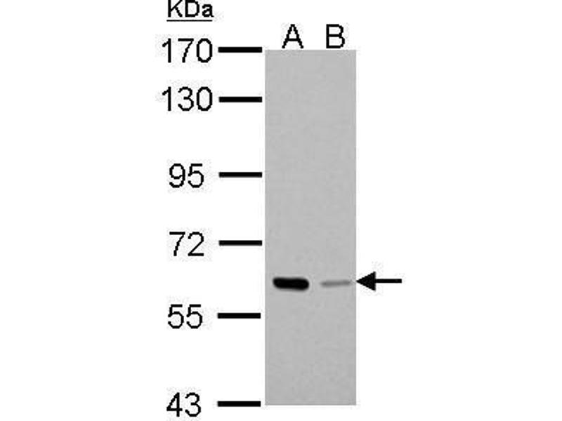 Western Blotting (WB) image for anti-P21-Activated Kinase 1 (PAK1) (Center) antibody (ABIN2855705)