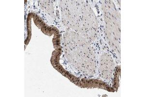 Immunohistochemistry (Paraffin-embedded Sections) (IHC (p)) image for anti-MKNK2 antibody (MAP Kinase Interacting serine/threonine Kinase 2) (ABIN4335144)