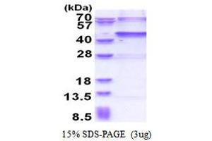 Image no. 1 for Ubiquitin Specific Peptidase 46 (USP46) (AA 1-366) protein (His tag) (ABIN6387382)
