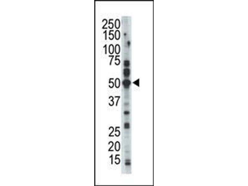 Western Blotting (WB) image for anti-Cyclin-Dependent Kinase 15 (ALS2CR7) (N-Term) antibody (ABIN359647)