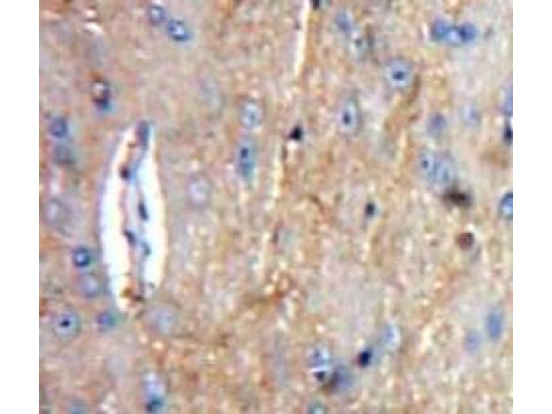 Immunohistochemistry (Paraffin-embedded Sections) (IHC (p)) image for anti-Complement Component 1, Q Subcomponent, A Chain (C1QA) (AA 23-245) antibody (ABIN2896717)