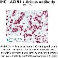 anti-ACIN1 antibody (Apoptotic Chromatin Condensation Inducer 1)