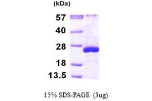 Image no. 1 for ADP-Ribosylation Factor-Like 5A (ARL5A) (AA 1-179) protein (His tag) (ABIN667845)