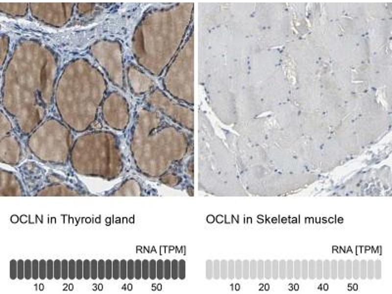 Immunohistochemistry (Paraffin-embedded Sections) (IHC (p)) image for anti-Occludin (OCLN) antibody (ABIN4341293)