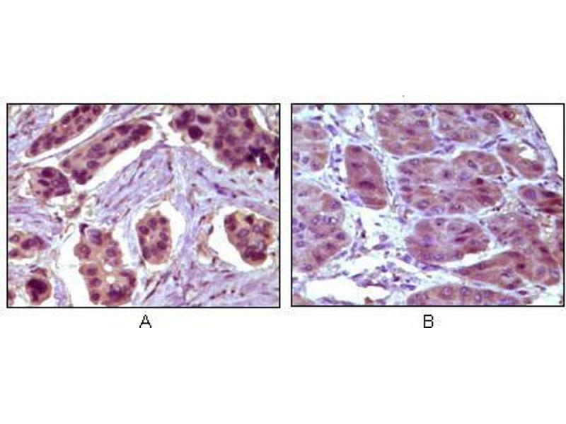 Immunohistochemistry (IHC) image for anti-BCL10 antibody (B-Cell CLL/lymphoma 10) (ABIN1724629)