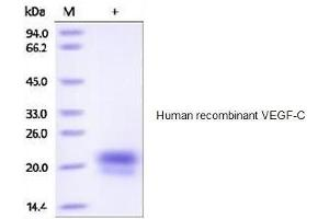 Image no. 1 for Vascular Endothelial Growth Factor C (VEGFC) (Active) protein (His tag) (ABIN1686474)