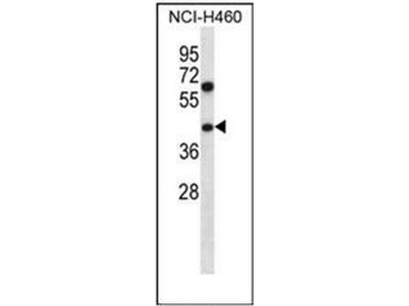 Western Blotting (WB) image for anti-Pseudouridylate Synthase 1 (PUS1) (AA 329-358), (C-Term) antibody (ABIN954388)