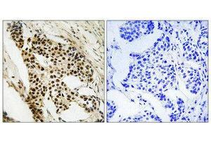 Image no. 1 for anti-Mitogen-Activated Protein Kinase-Activated Protein Kinase 2 (MAPKAPK2) (Ser272) antibody (ABIN1848344)