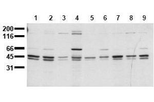 Western Blotting (WB) image for anti-SHC1 antibody (SHC (Src Homology 2 Domain Containing) Transforming Protein 1) (C-Term) (ABIN126887)