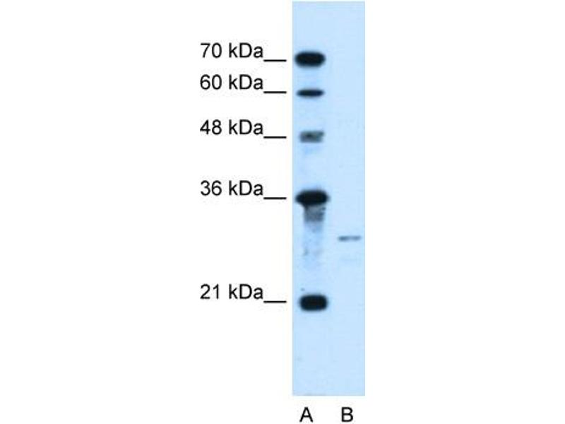 Western Blotting (WB) image for anti-Sonic Hedgehog antibody (SHH) (N-Term) (ABIN310574)