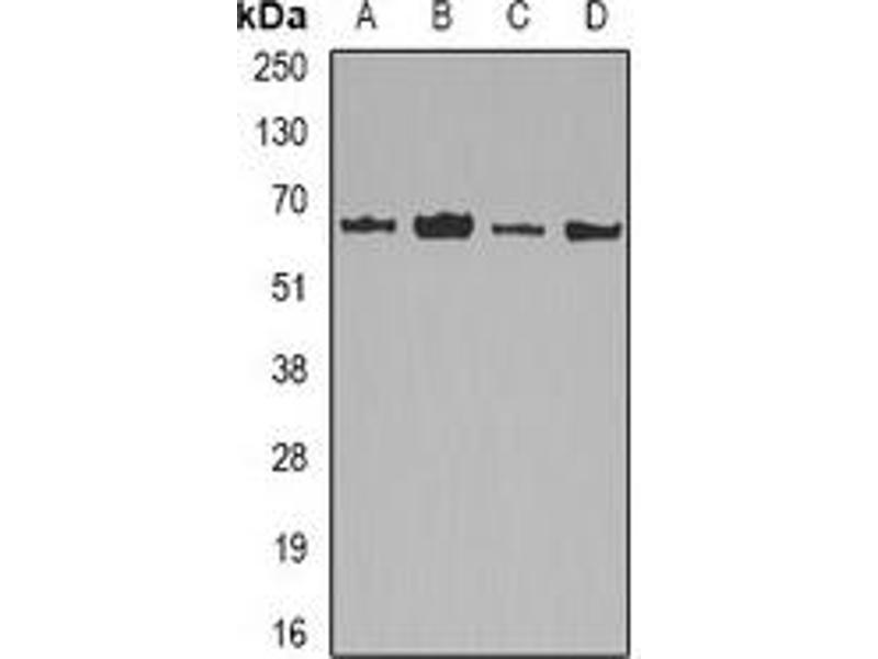 Western Blotting (WB) image for anti-Lamin B2 (LMNB2) antibody (ABIN2966775)