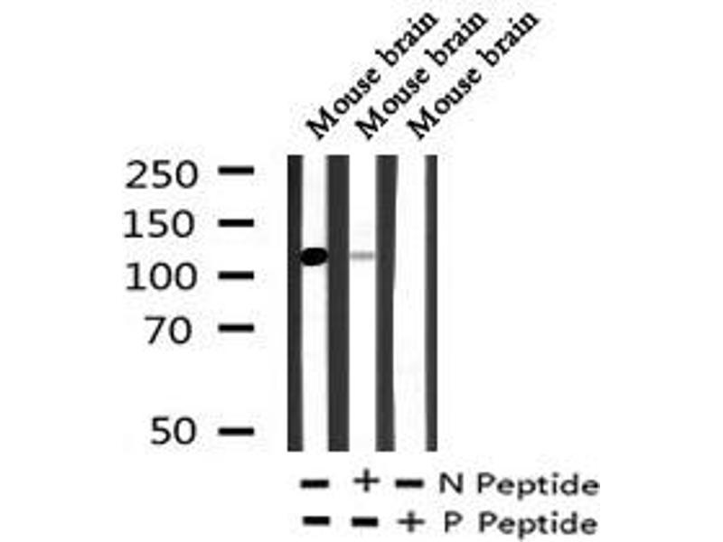 Image no. 3 for anti-Cadherin 1, Type 1, E-Cadherin (Epithelial) (CDH1) (pTyr754) antibody (ABIN6269849)