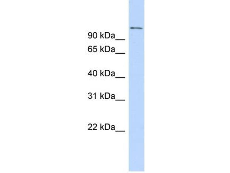 Western Blotting (WB) image for anti-Retinoblastoma Binding Protein 8 (RBBP8) (C-Term) antibody (ABIN2784374)