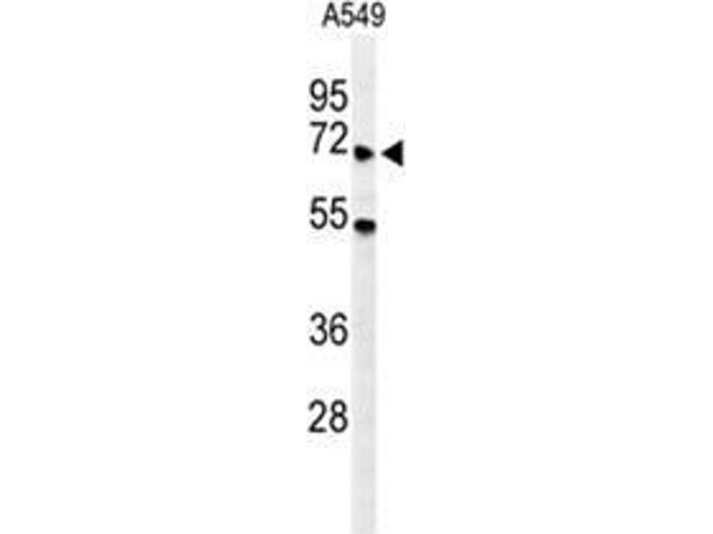 Western Blotting (WB) image for anti-YTH Domain Family, Member 3 (YTHDF3) (AA 235-265), (Middle Region) antibody (ABIN955620)
