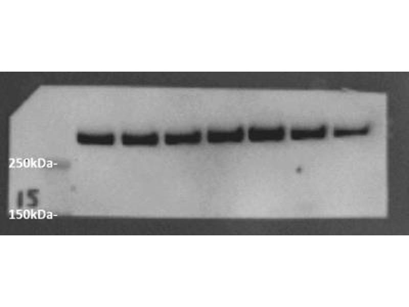 Western Blotting (WB) image for anti-Ataxia Telangiectasia Mutated (ATM) (pSer1981) antibody (ABIN151772)