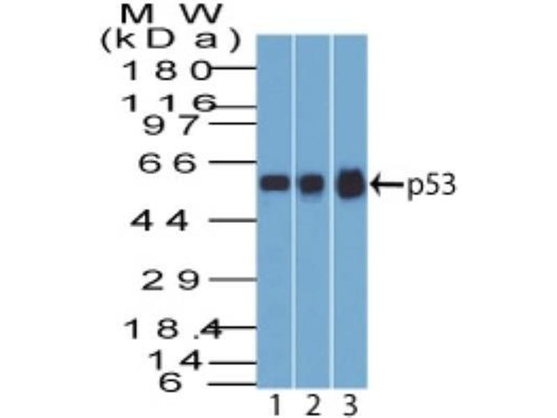 Western Blotting (WB) image for anti-Tumor Protein P53 (TP53) (AA 16-25), (N-Term) antibody (ABIN4342783)