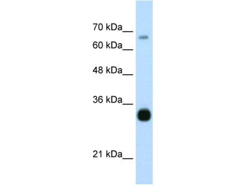 Western Blotting (WB) image for anti-THO Complex 3 (THOC3) (Middle Region) antibody (ABIN184069)